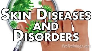 Skin Diseases and Disorders