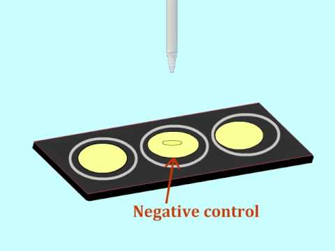 Agglutination assay to detect antigens - Multi-Lingual Captions