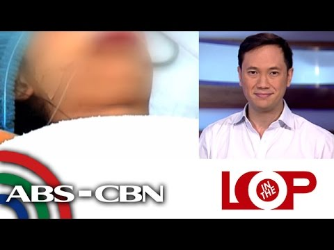 In the Loop: DOH says stray bullet hit Malabon teen