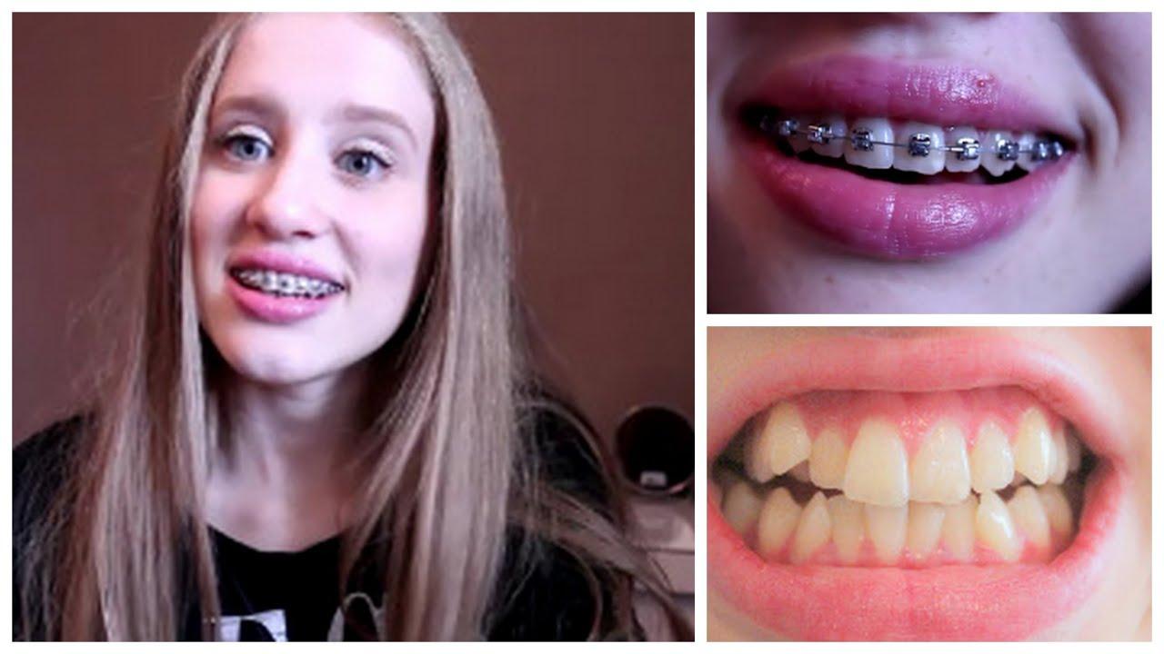 tandställning före och efter