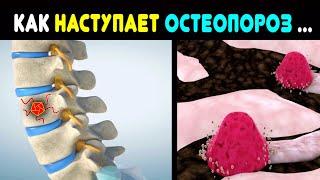 Как наступает остеопороз: 5 тихих предвестников костного апокалипсиса, которые важно не пропустить