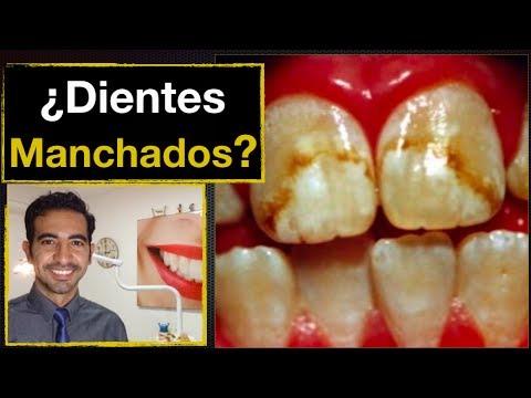 Dientes manchados y fluorosis dental. Causas y tratamiento