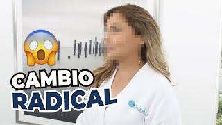 MI TRANSFORMACIÓN RADICAL 😱🔝 | Tratamientos de medicina estética y láser 💉💆♀