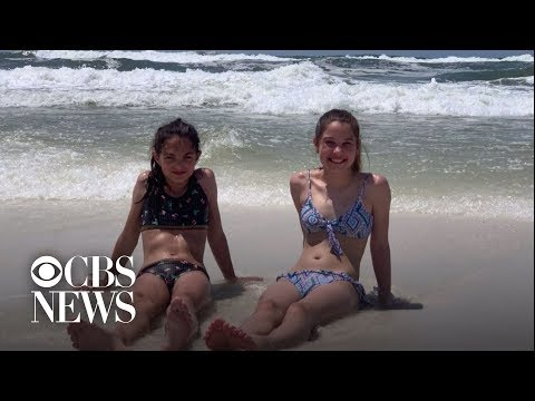 12-year-old contracts flesh-eating bacteria during Florida vacation