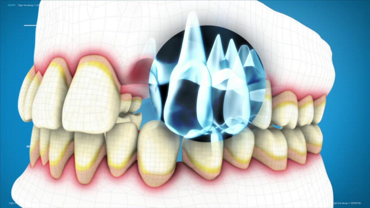 Oral-B Pro-Expert premium Gum Protection toothpaste