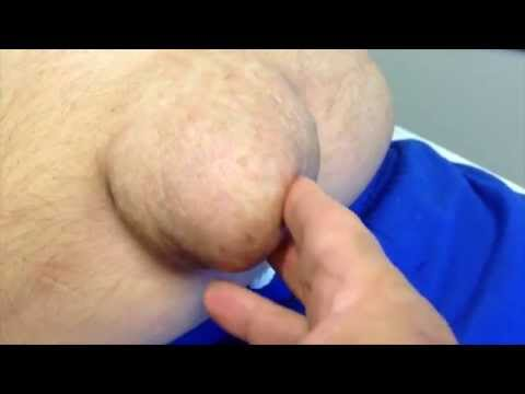 Umbilical Hernia in Cirrhosis