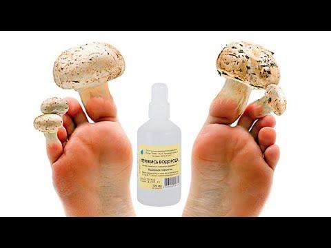 Чем вылечить грибок ногтей на ногах