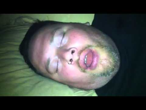 how to stop drooling while sleeping with braces