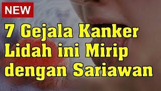 Lidah sakit bisa disebabkan oleh berbagai macam penyebab, lidah sakit ini juga terkadang sangat meny.