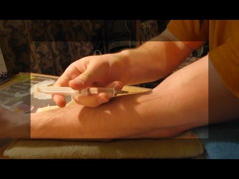 Как порезать руку не больно? нужно для спектакля до крови царапнуть руку