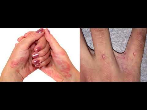 Как проявляется псориаз: первые симптомы, как начинается