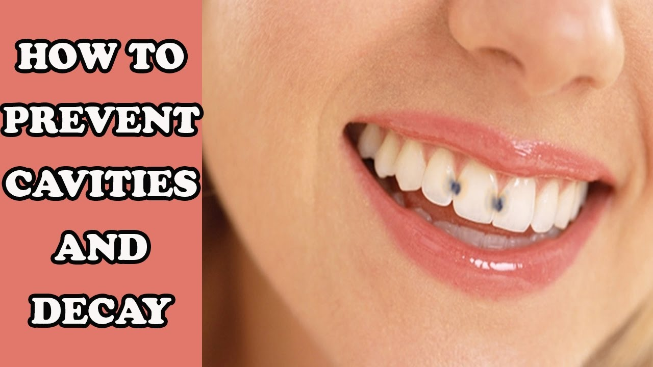 How To Prevent Cavity And Decay