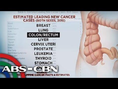 Bandila Paano Maiiwasan Ang Colon Cancer Youtube