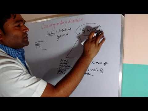 Coronary artery disease/Ischemic heart disease/Ischemic cardiomyopathy hand drawn tutorial part 1