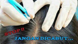 7 Solusi Mengatasi Kebotakan Atau Rambut Rontok Mau tau cara mengatasi rambut rontok? simak video in.