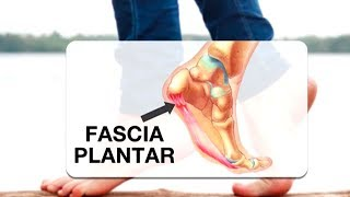 Causa plantar fascitis reaction ¿la fibromialgia