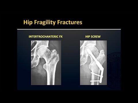 Download Fragility Fractures