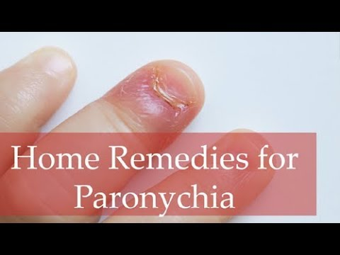 Top 6 Home Remedies for Paronychia and Best Home Treatment Methods