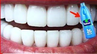 всего за 2 Минуты   Превратите Желтые Зубы в Жемчужно Белые, Отбеливание Зубов в Домашних Условиях