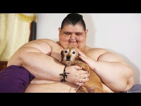 Самый толстый человек в мире Хуан Педро Франко снова может ходить