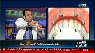 #الناس_الحلوة   الحل الأمثل لعلاج فقدان الأسنان واللثة مع د.شادى على حسين