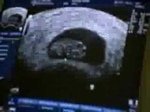 Ultraschallvideo