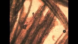 paraziti dactylogyrus în trematode monogenetice cancer colon quoi manger