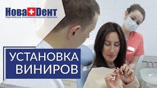 Виниры на зубы установка. 🌟 Причина и этапы установки виниров на зубы. НоваДент.