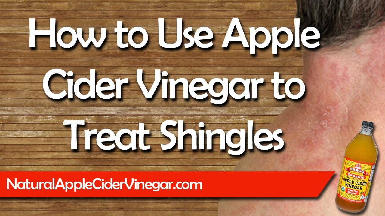 Apple Cider Vinegar For Shingles Natural Home Remedy