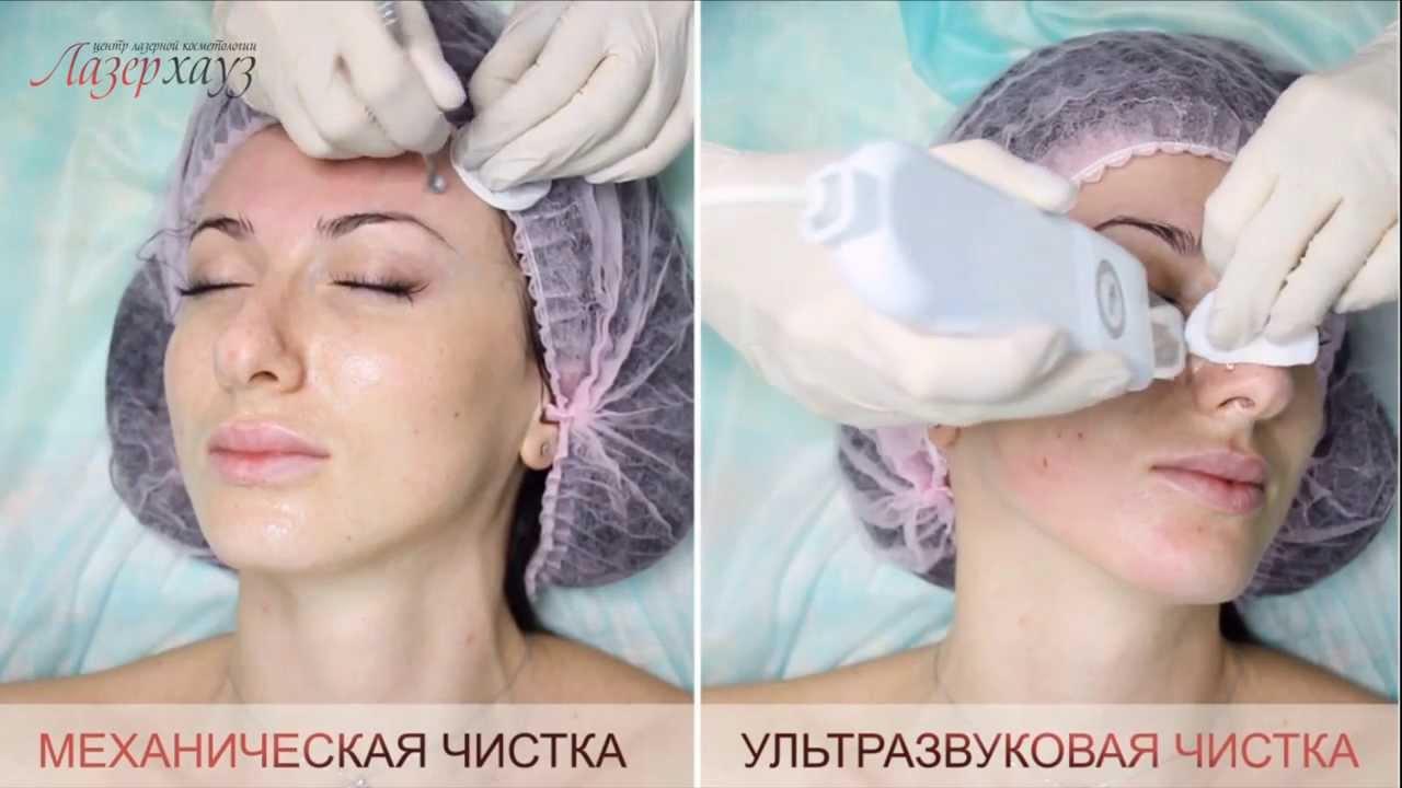 чистка лица комбинированная фото