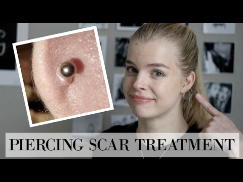 How To Treat Hypertrophic Scars Piercing Ps