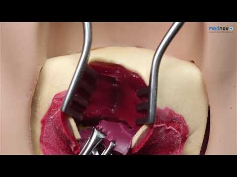 How to repair 3rd degree Perineal Tear - YouTube