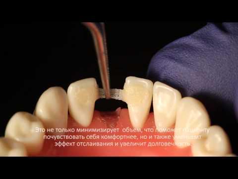 Мостовидные протезы  передних зубов при помощи Ribbond