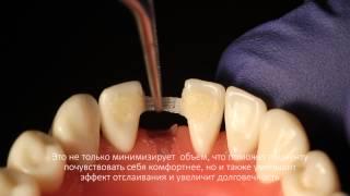 Мостовидные протезы  передних зубов при помощи Ribbond(Мосты из Ribbond прочны, надежны и эстетичны. Можно изготовить мост прямым способом непосредственно во рту..., 2015-06-05T18:25:07.000Z)