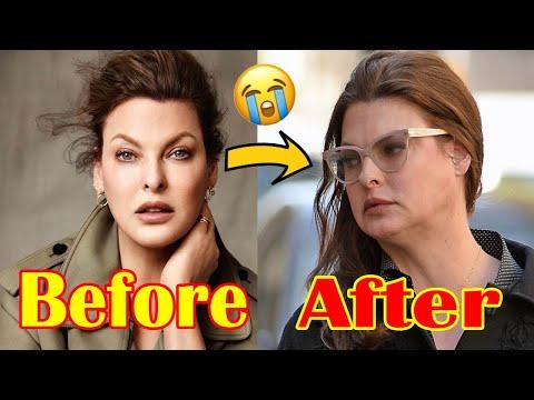 Model Linda Evangelista says body sculpting side-effect left her ...