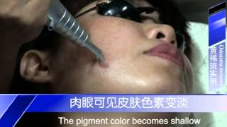 detailed introduction of q switched laser equipment its therapeutic method of chloasma