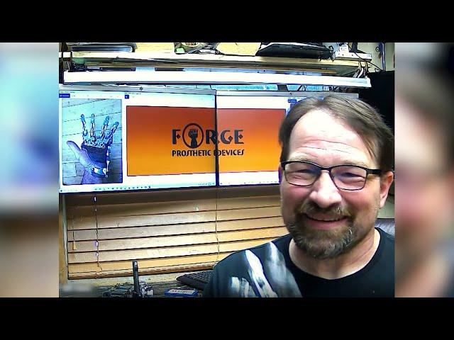Mechanical vs Myoelectric Prosthesis - talk with Ian Davis