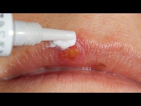 Как убрать быстро простуду на губе в домашних