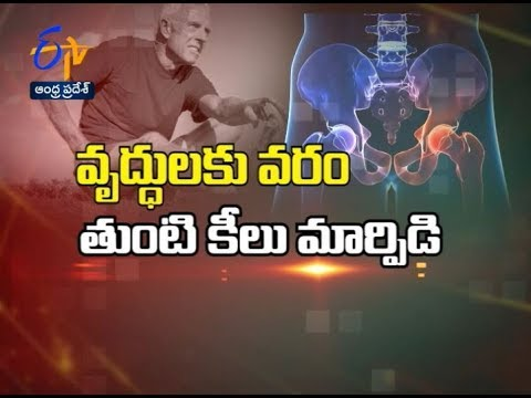 Hip replacement overview | Sukhibhava | 14th January 2019 | ETV Andhra  Pradesh