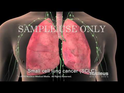 Cancer of the Lymph Nodes - Symptoms And Treatment from YouTube · Duration:  1 minutes 55 seconds
