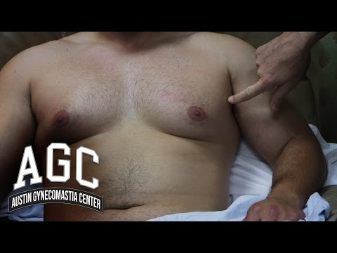 Gynecomastia Patient Goes Public on His Gyno Problem and Treatment with Austin Gynecomastia Center