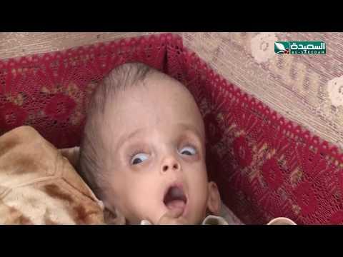 سنابل الخير - الطفل محمد ومعاناته من إستسقاء الدماغ  30-3-2020م