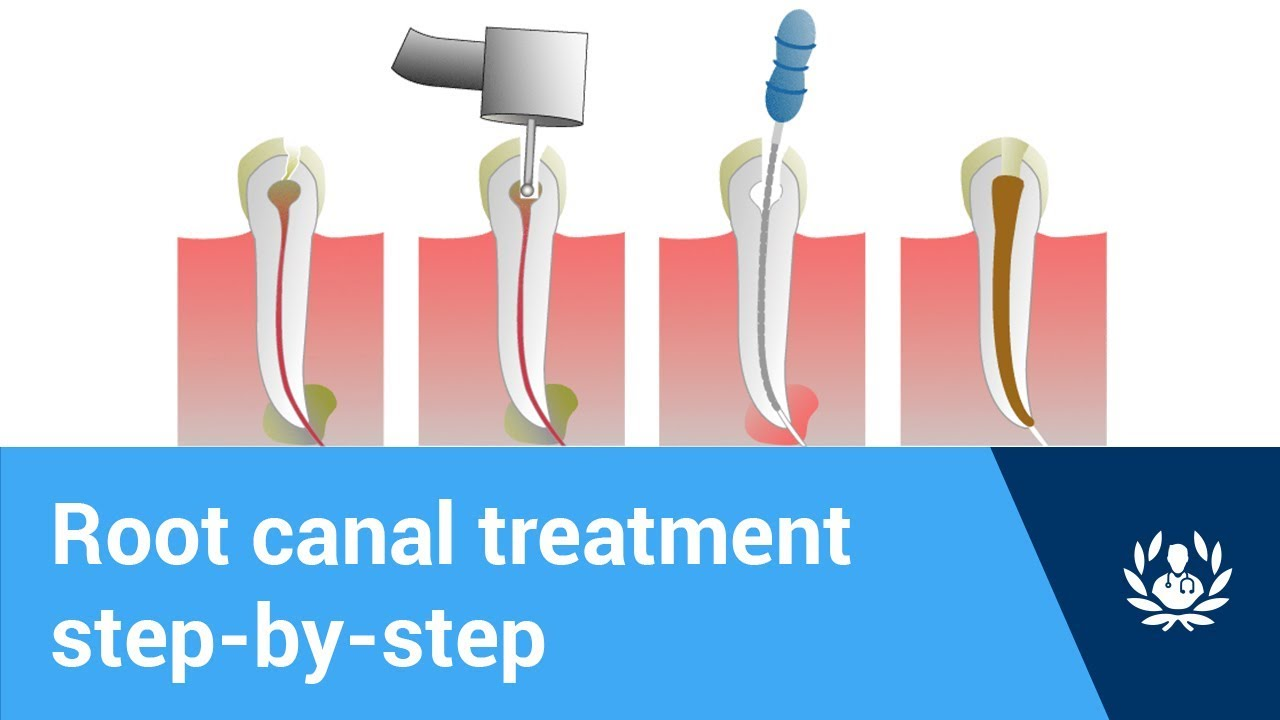 Root Canal Myths: Busted – Chatham NJ | Advanced Dentistry, LLC