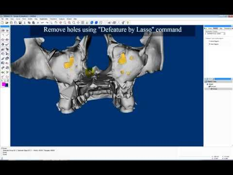 Remove Internal Structures of Upper Jawbone