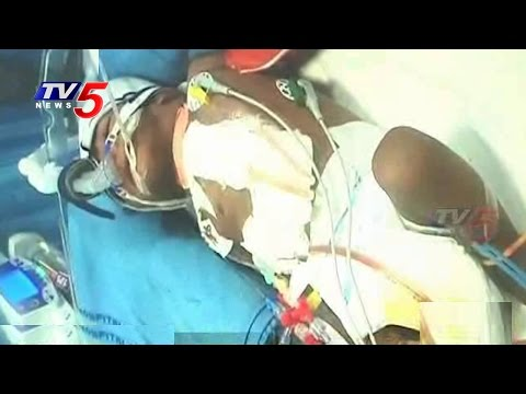 Andhra Hospital Doctors Succeed in Rare Operation : TV5 News