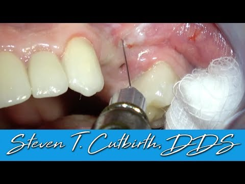 How to Give a Painless Injection – Dental Minute with Steven T. Cutbirth, DDS
