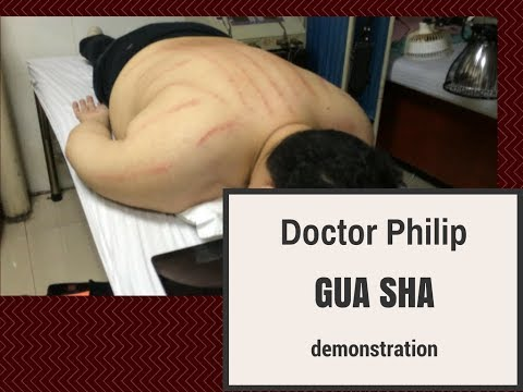 Gua Sha (scraping) Demonstration in Acupuncture Clinic with Dr. Philip Tan-Gatue