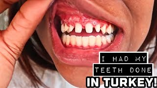 I HAD MY TEETH DONE IN TURKEY?! | MY EXPERIENCE WITH PREMIUM DENTAL TURKEY