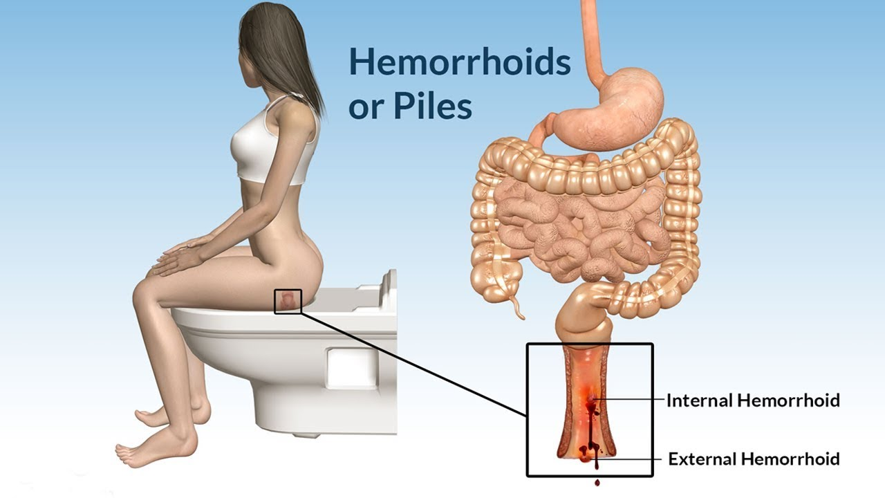 hemorrhoids or piles types