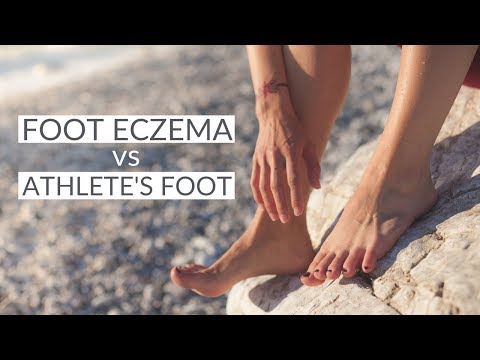 Is it Foot Eczema or Something Else? - It's an Itchy Little